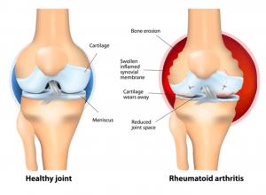 gota-artritis