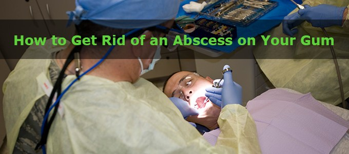 How to Get Rid of an Abscess on Your Gum