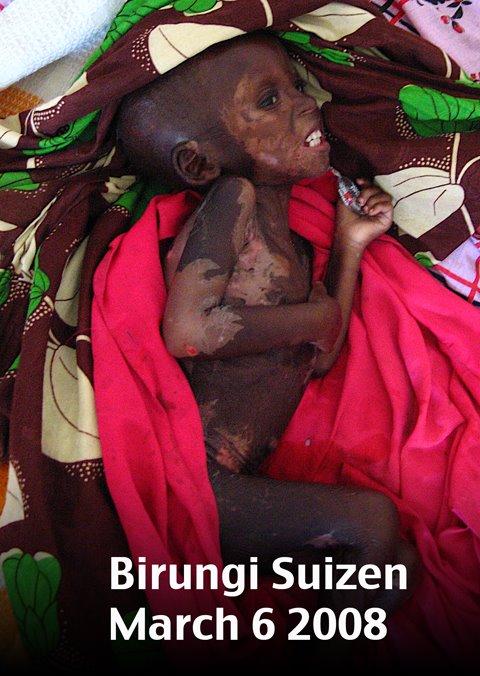 Birungi- prior to treatment by Drs. Scott and Jennifer Myhres in Uganda