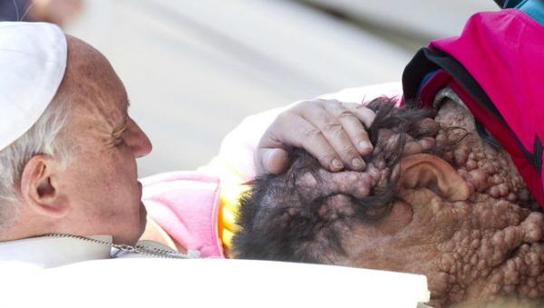 Papa_Francisco-abrazo-deformaciones-piel_MDSIMA20131107_0322_7