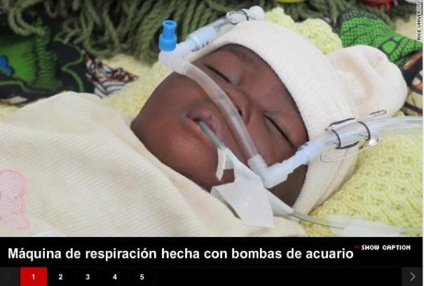 34 Las bombas de acuario pueden salvarle la vida a bebés