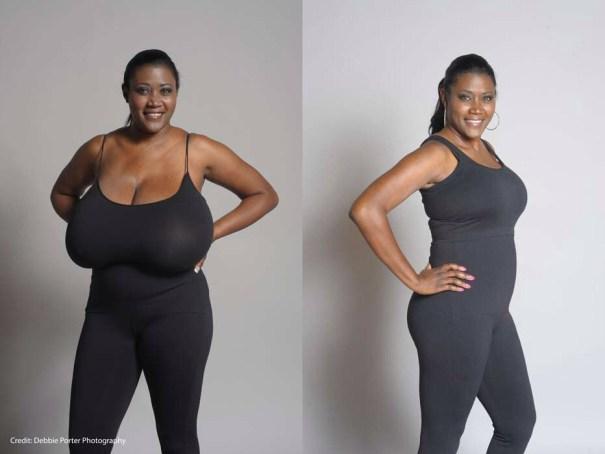 image8 Jeva tiene la reducción de senos más grande registrada en la historia