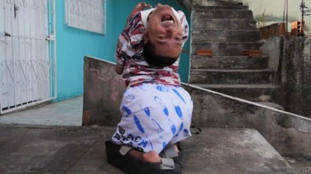 image170 La inspiradora historia del brasileño que nació con la cabeza al revés