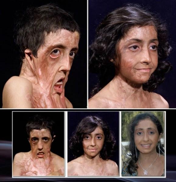 milagro Increible reconstrucción de la cara de una niña afgana
