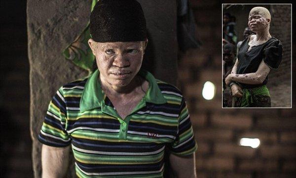 Dorothy Mausen, a 22-year-old Malawian a
