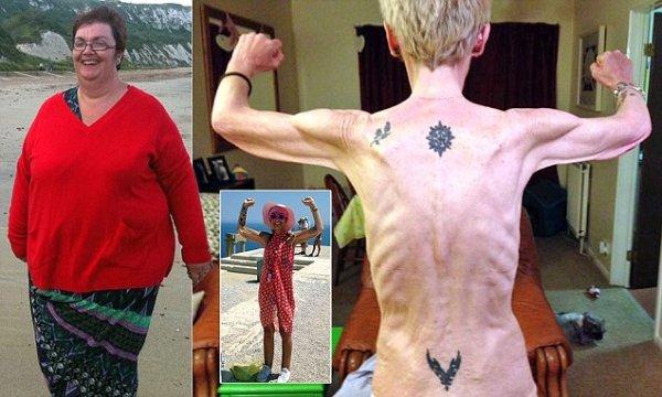29906f2d00000578 0 image a 14 1434104795873 De sufrir obesidad mórbida a anoréxica en sólo dos años