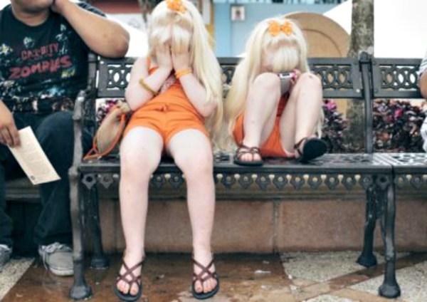 albinos Fotos   Albinismo en Puerto Rico