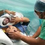 riollas-parto-cesarea-ginecologo