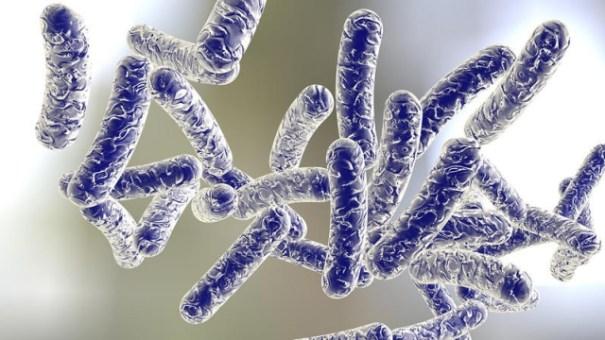 enfermedad legionario Muere persona infectada con Legionario en El Bronx