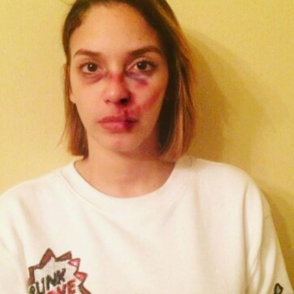 hony estrella FOTOS – Ingeniosa campaña para la NO violencia contra la mujer