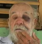 agredido Golpean brutalmente a un anciano de 82 años para asaltar su vivienda
