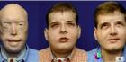 Trasplante rostro