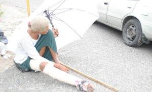 dona1 RD   Doña con fractura en pie tiene 4 días durmiendo en una calle