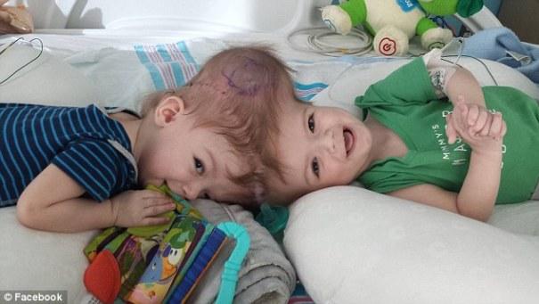 jadon and anias mcdonald 2 Foto   Gemelos siameses separados se miran por primera vez