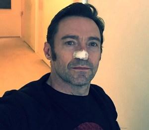 """hugh jackman Tipo de """"Wolverine"""" y su lucha contra el cáncer"""