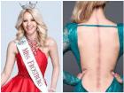 victoria graham Reina de belleza: Tengo una enfermedad invisible
