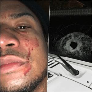 vakear Cantante urbano Vakeró publica fotos tras intento de atraco