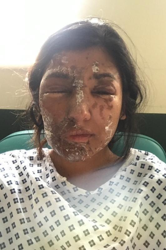 Resham Khan 3 Aspirante a modelo atacada con ácido en su 21 cumpleaños; primo en coma