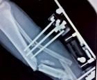 """Avanza investigación sobre implantes """"carabelitas"""""""
