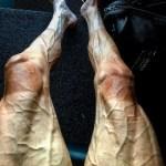 piernas 150x150 Así quedaron las piernas de un ciclista del Tour de Francia