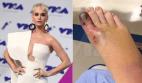 Katy Perry 300x175 Gracias a Katy Perry, sólo tengo 9 dedos