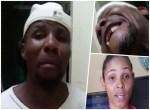 hombre pilon 150x110 Video: Su mujer le tumbó los dientes de un pilonazo