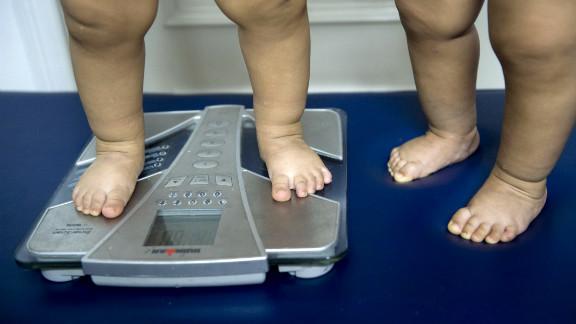 Obesos Hay más de 120 millones de niños obesos