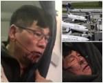 pasajero united 150x120 Botan agentes que arrastraron pasajero en vuelo de United