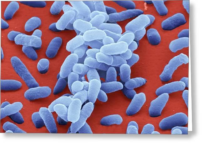 Enterobacter Cloacae Bacteria Photograph by Juergen Berger