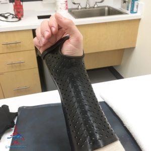 Author Chris Carley displays his wrist injury.