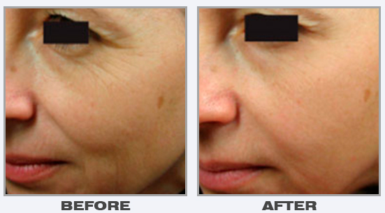 laser-skin-rejuvenation-3