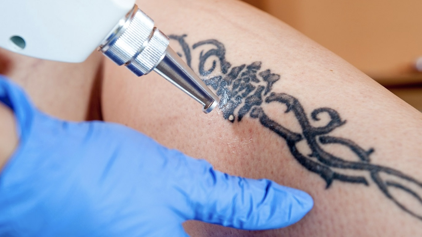 Does Laser Tattoo Removal Hurt? | ReNewMD Wellness ...