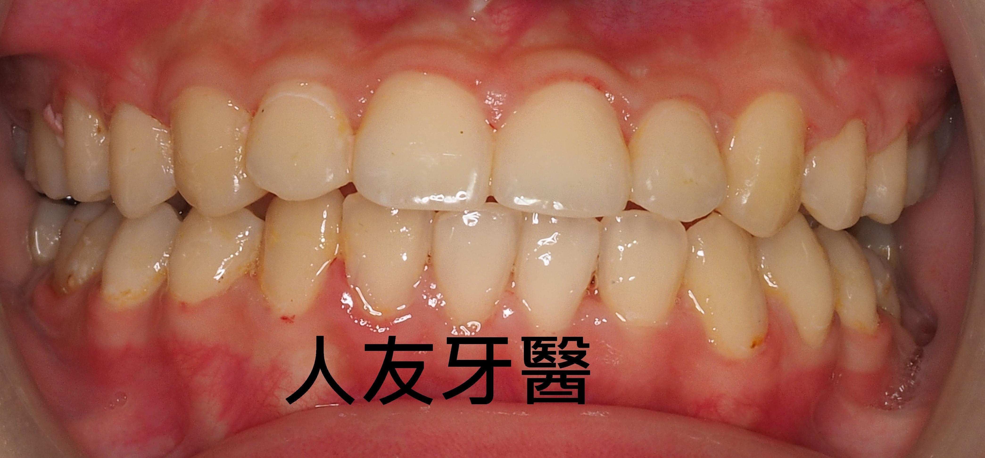 暴牙&咬合不正之矯正 – 人友牙醫 RenU
