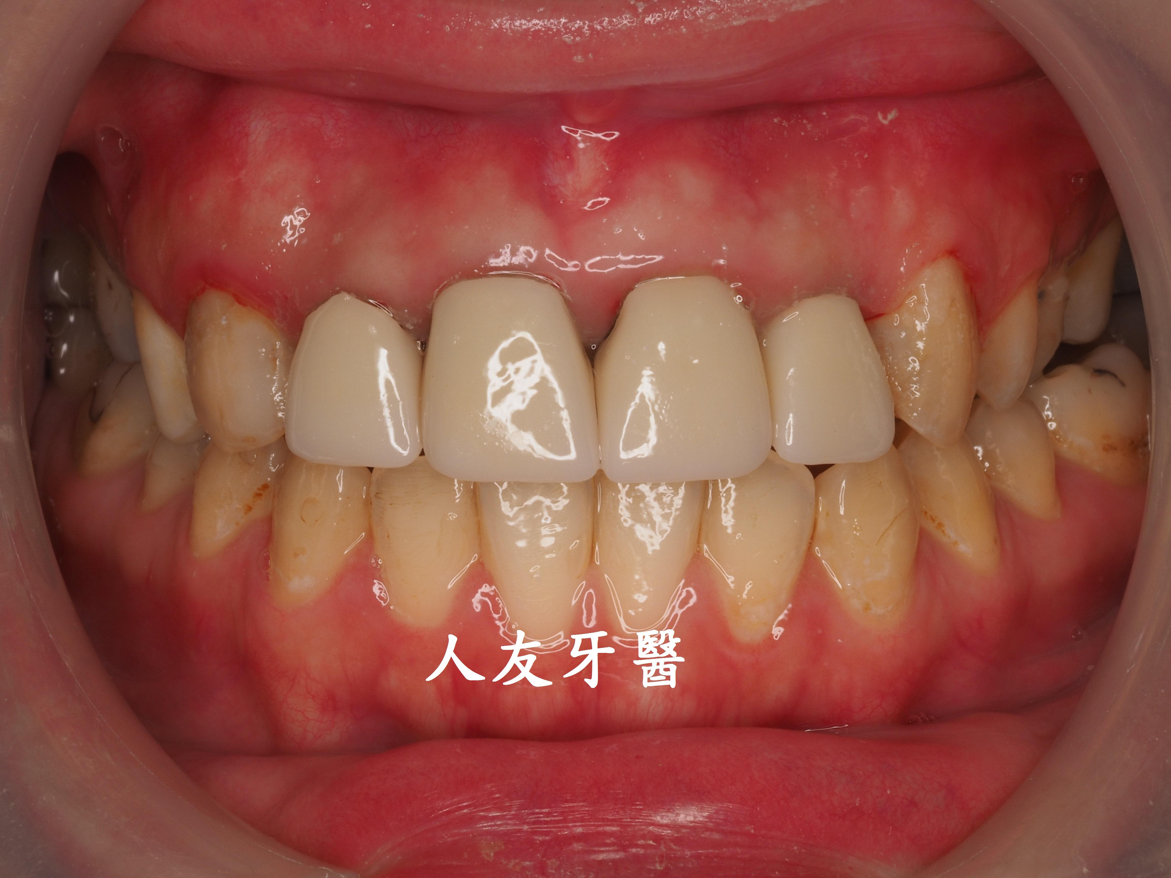 舊式金屬門牙 vs. 數位設計全鋯牙(案例分享) – 人友牙醫 RenU