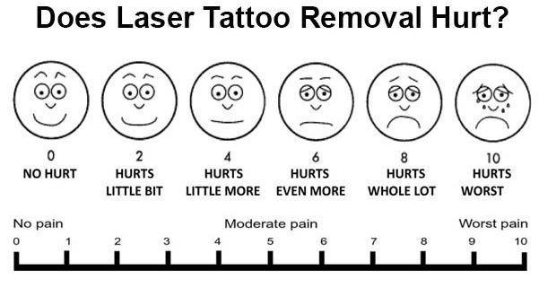 Does Laser Tattoo Removal Hurt? Understanding Tattoo Removal Pain