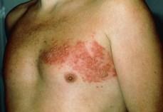 shingles rash chest