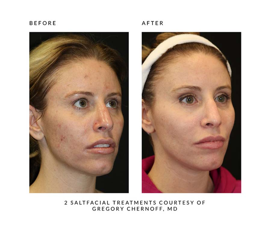 Salt Facial Before and After