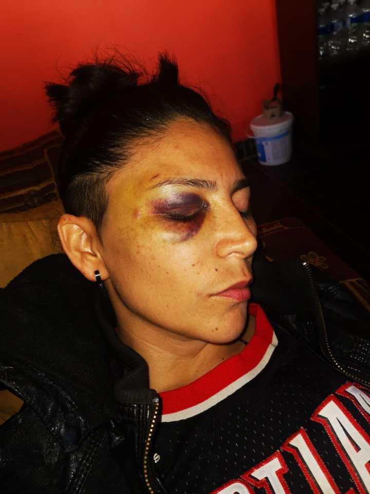 La golpiza que le dieron en febrero dejó a una de ellas con moretones en la cara.  Foto: Cattrachas