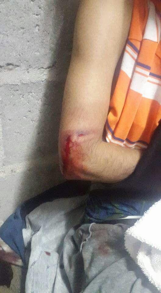 herido-pedregal-1