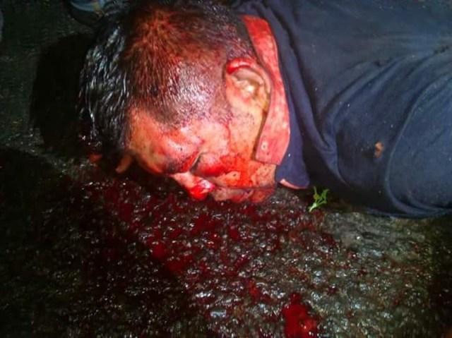 Si alguien lo identifica, que lo denuncie, fue golpeado por intento de robo de auto en Ecatepec