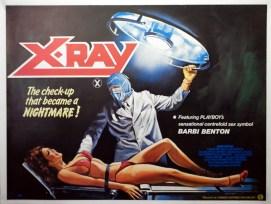 x-ray-chantrell