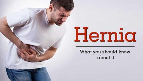 Obat Hernia Di Apotik