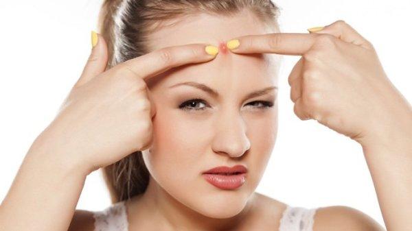 Obat Jerawat Paling Ampuh Dan Cepat Hilang