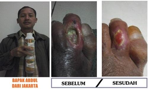 obat luka bakar alami