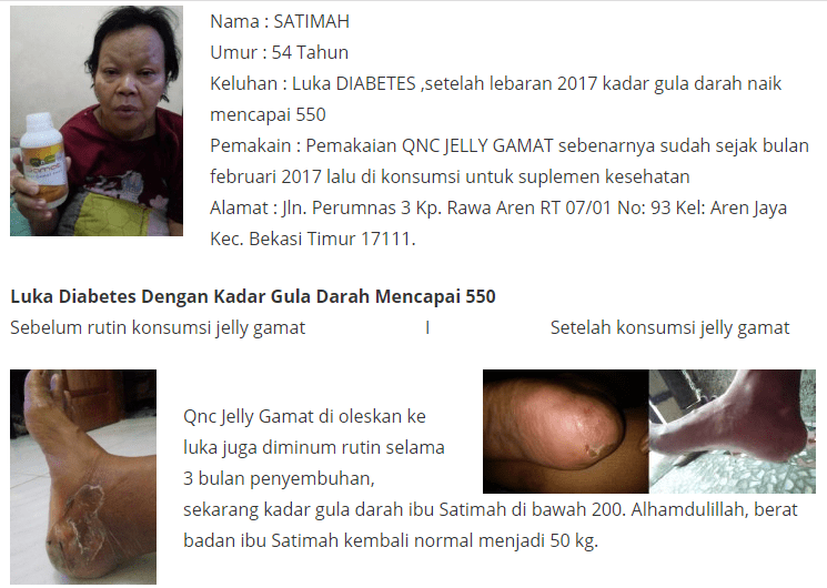 Berapa Harga Qnc Jelly Gamat Di Apotik