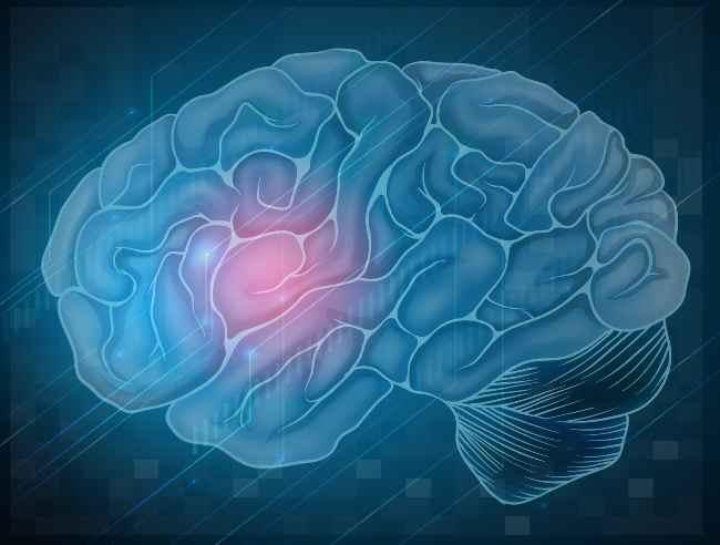 stroke-alodokter