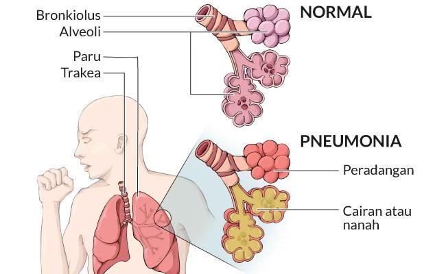 Pneumonia Gejala Penyebab Dan Mengobati Alodokter