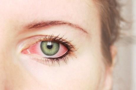Hasil gambar untuk Konjungtivitis (Penyakit Mata Merah)