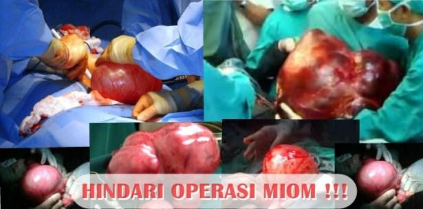 Obat Herbal Penghancur Miom Tanpa Operasi