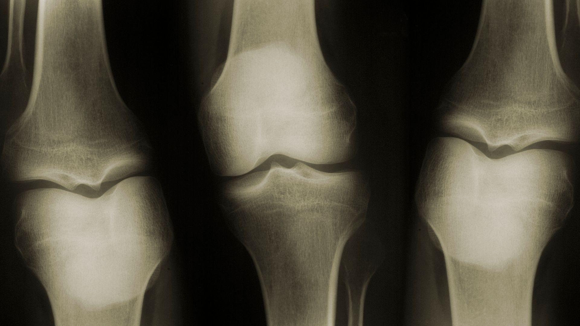 Ilustrasi tulang yang sehat dengan asupan protein yang baik/ foto edit by canva